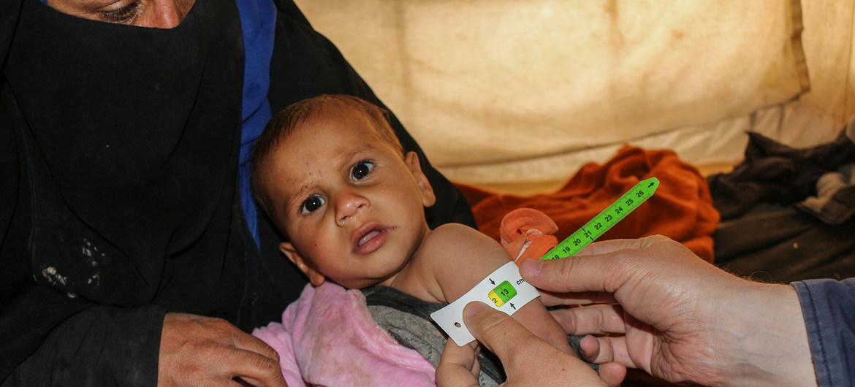 مسؤول أممي: السوريون يأكلون كميات أقل حتى يتمكنوا من إطعام أطفالهم.. وأكثر من 12مليون شخص لا يحصلون على غذاء بانتظام